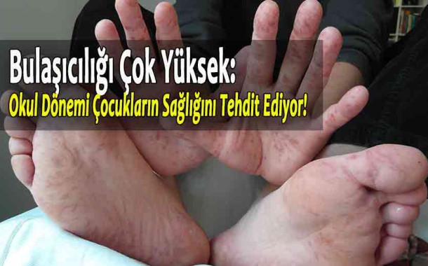 Okullar açılırken 'el, ayak, ağız hastalığı'na dikkat!