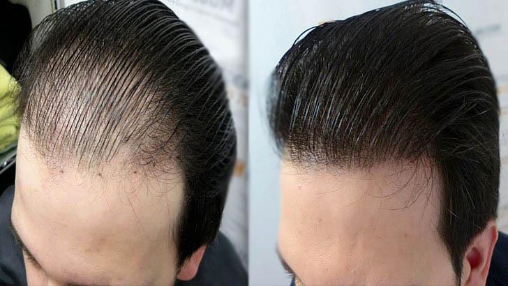 Saç Dökülmesine Karşı Yeni İlaç
