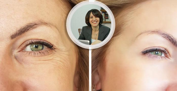 Op. Dr. Yağmur Reyyan Erol Göz Kapağı Estetiğini Anlattı