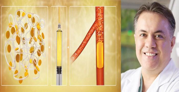 Türk doktorun geliştirdiği yöntemle kanser tedavisinde olumlu sonuçlar sağlandı